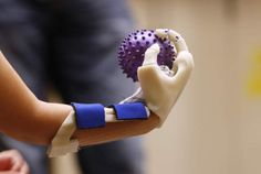 UNLV students, professors put mobility at young girl's fingertips (Las Vegas Review-Journal)