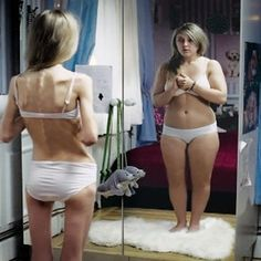 Best Home Treatment for Anorexia Nervosa-2