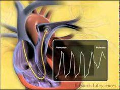 Swan Ganz Physiology