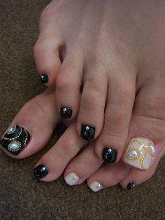 Black and white toe nails