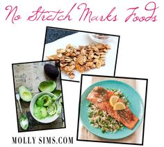 No Stretch Marks Foods
