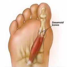 Sesamoid Bones in th