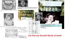 We have to look at the evidence and wonder by the fillings not matching, and the gap between the front teeth was this really where Lee Harvey Oswald was buried?  I wonder was his skull collected by this gang?  You be the Judge.