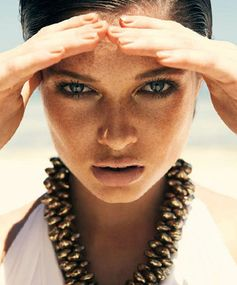 How to Get Rid of Freckles - Sunspots on Skin