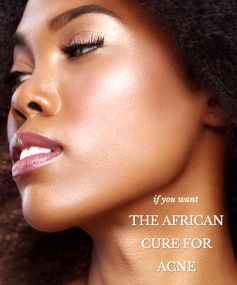The African Cure for Acne
