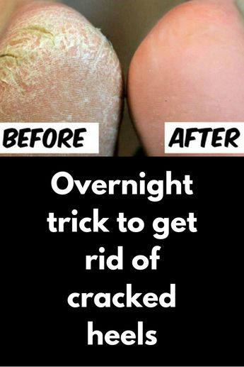 Overnight trick to get rid of cracked heels