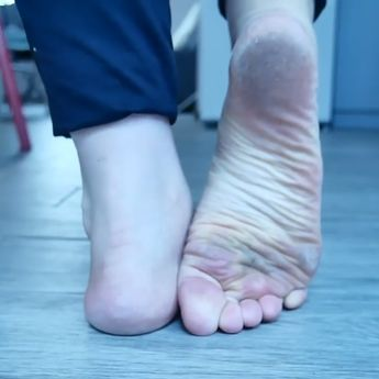 How to Get Rid of Dead Skin on Feet: Step by Step Guide