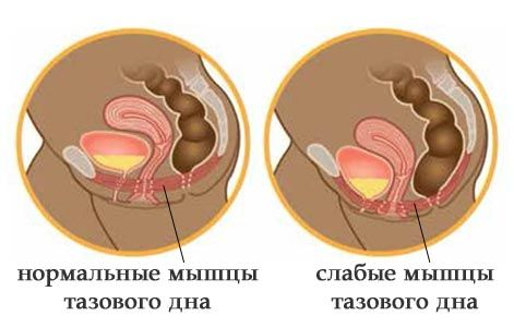 Как сделать мышцы влагалища уже 125