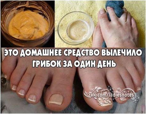 Чём лечить грибок ногтей на ногах в домашних условиях 184