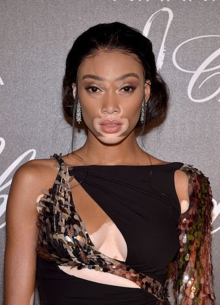 Winnie Harlow attends the Chopard dinner in honour of the Rihanna X Chopard Collection during the 70th annual Cannes Film Festival.