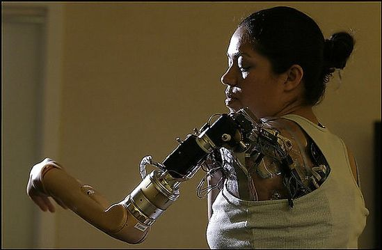 Claudia Mitchell is the first woman to have a bionic arm - a prosthetic limb that she controls with her mind.