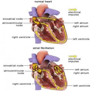 Natural Cure For Atrial Fibrillation