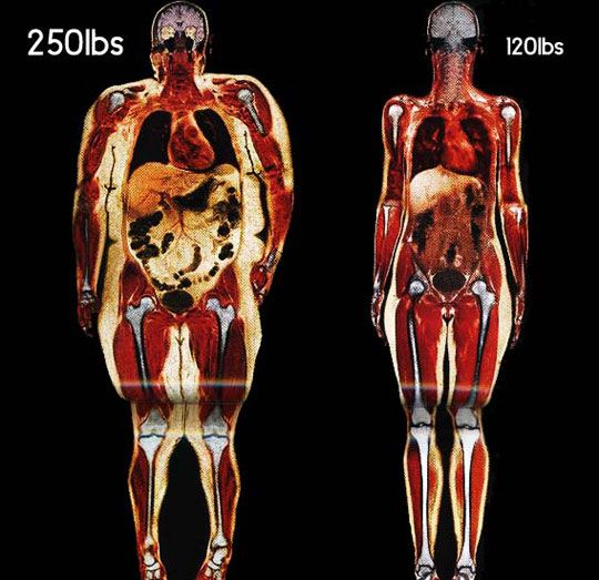 Body scans of 2 women.   One weighing 250 lbs, the other 120 lbs. WOW.
