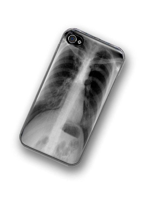 iPhone Case XRay
