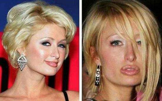 Check out Paris Hilton from Celebrity Plastic Surgery Fails