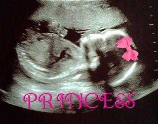 #baby #girl