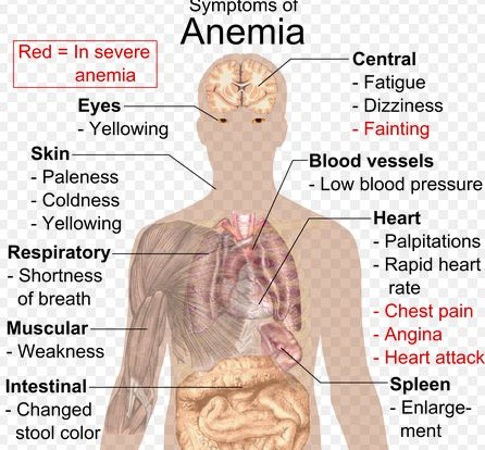 Did you knew that 1 in 10 teen girls and women have anemia?Comment or give like if you know any symptoms.#MedicinesMexico #Anemia #health tip