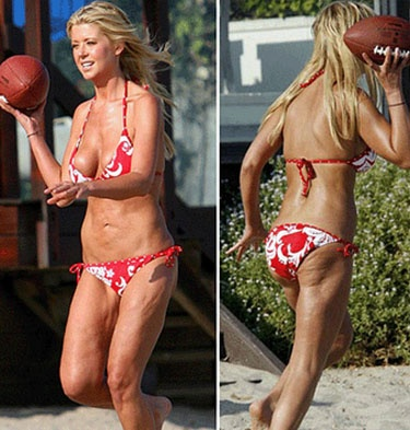 Tara Reid -- too much liposuction -- caught without photoshop to smooooth it over.