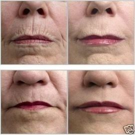 Natural Remedy - There are some natural remedies to keep your face wrinkle free. For example mix two tea spoon of honey, a pinch of turmeric powder with few drops of lemon and massage on your face. Leave it for 10 - 15 minutes and then wash away with normal water Plus more simple ways to deal with wrinkles....
