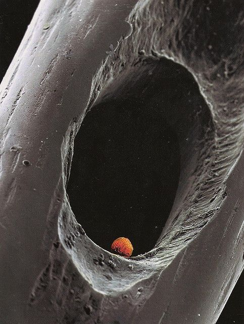 Microscopic photograph of an embryo in  the eye of a needle