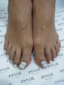 White and baby blue striped toenails-----repinned by acb
