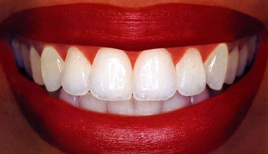 Never buy white strips again! dip q-tip in hydrogen peroxide (the key ingredient in whitestrips) and apply to surface of teeth for 30 sec before brushing teeth) once a day for a few days...i shall be trying this.