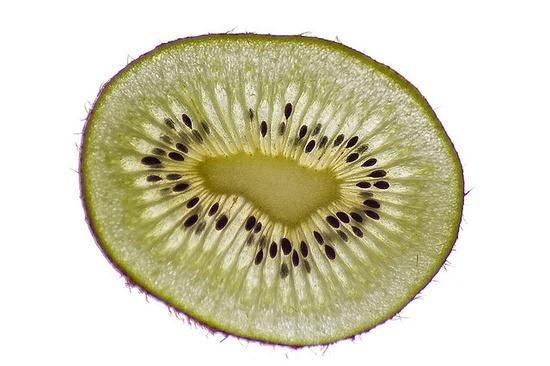 Kiwi. pretty fruit :)