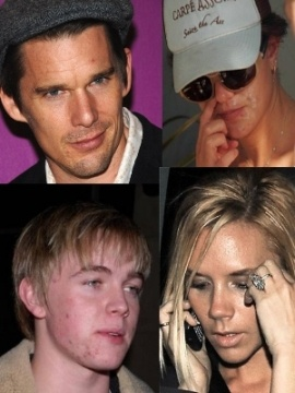 Celebs with acne, zits, pimples #celebrity #skin #hollywood #makeup #makeover #zits --- www.acneonestep.com
