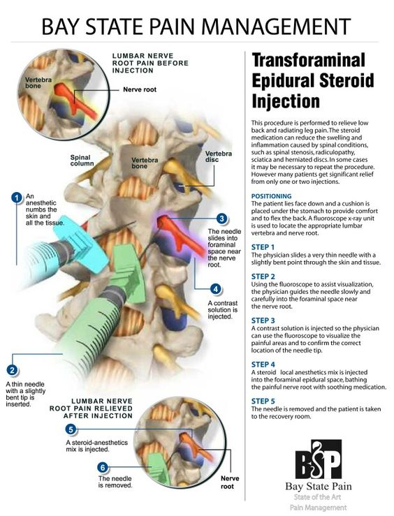 Lumbar, epidural, steroid, injections for Low Back Pain and Sciatica