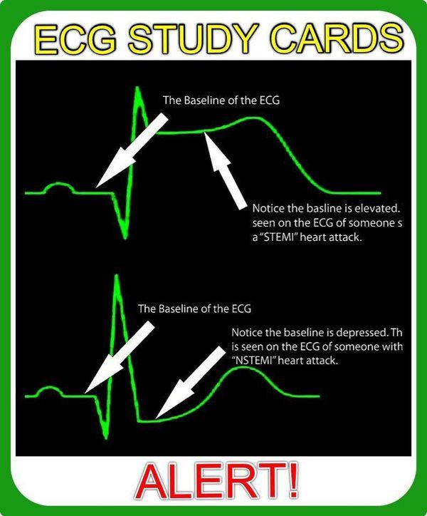 EKG Study Guide: Interpreting the Electrocardiogram