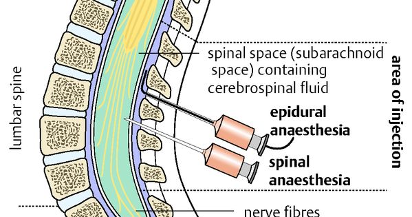 epidural spinal anesthesis Epidural administration while spinal anesthesia is generally a single epidural anesthesia and analgesia administered at top-rated institutions does not.