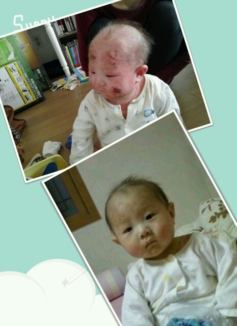 How to Treat Infant Eczema Naturally picture