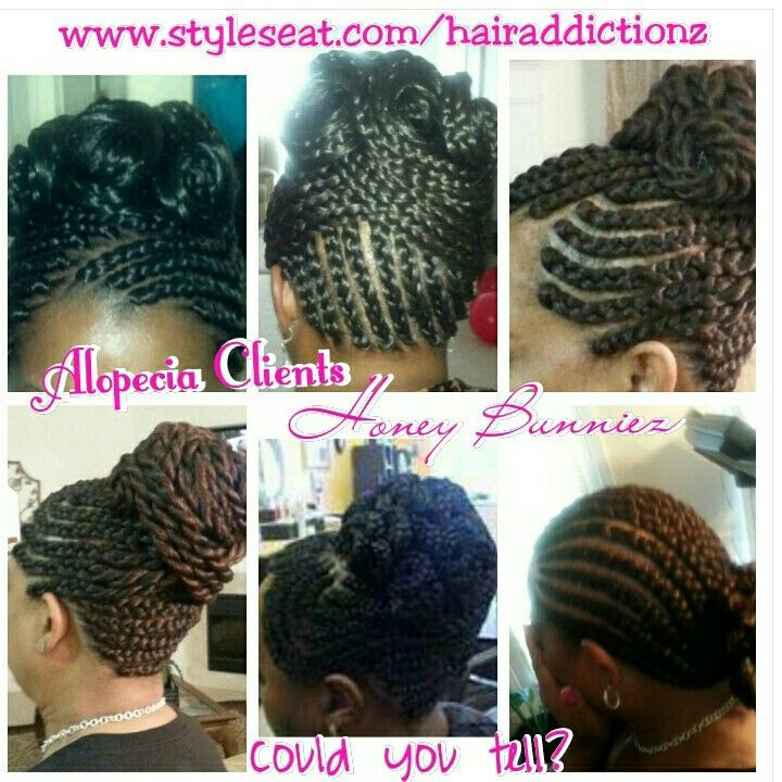 Hairstyles For Alopecia Hairstylegalleries Com