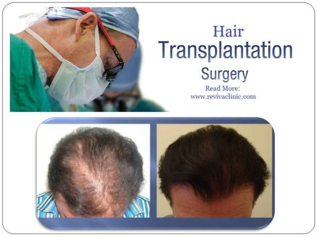 Hair transplant in delhi aravali
