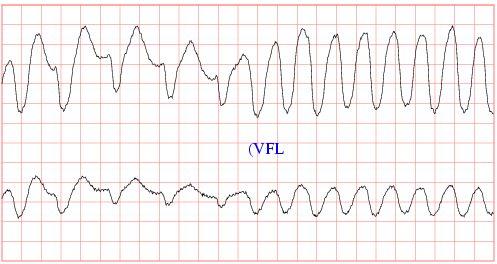 Abnormal heart rhythm (arrhythmia) - Pictures