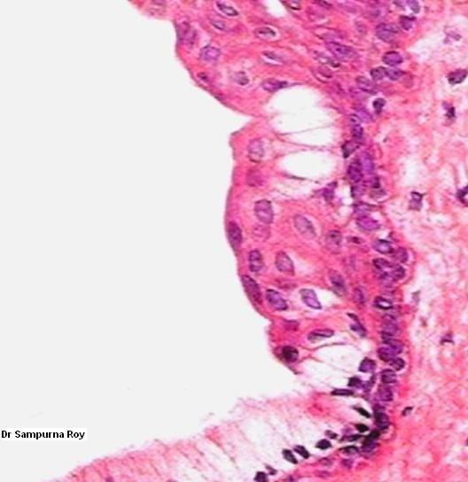 Median palatal cyst - Wikipedia