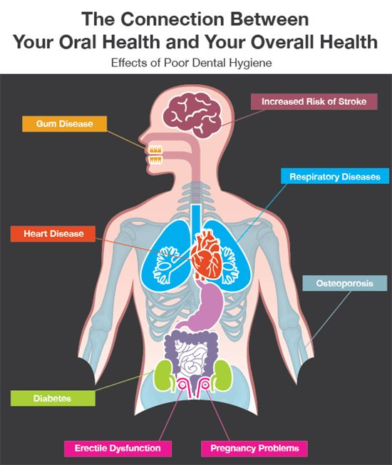 Best Images About Oral Systemic Health Connection On