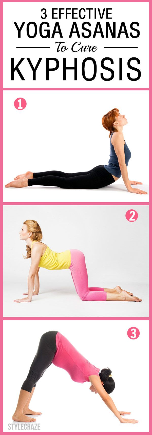 3 Effective Yoga Asanas To Cure Kyphosis recommendations