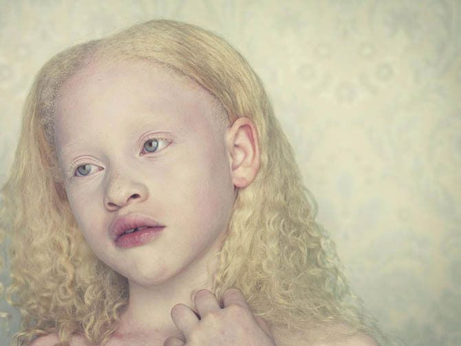 Beautiful Albino People Dizzyhamster Albinobeauty