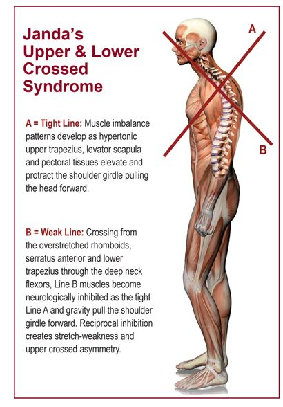 Upper Crossed Syndrome | Massage Therapy | Pinterest