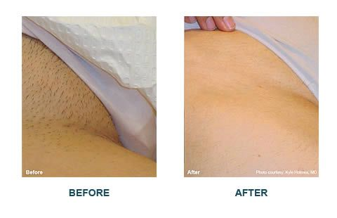Bikini hair laser line removal