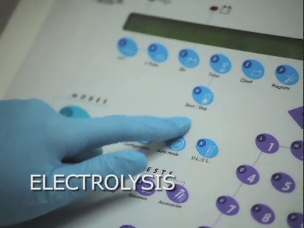 Electrolysis Hair Removal on a... http://youtu.be/oKfjDxDIAuw