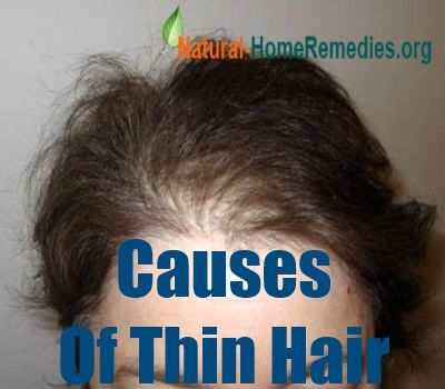 What Causes Thin Hair In Women? | Home Remedies | Pinterest