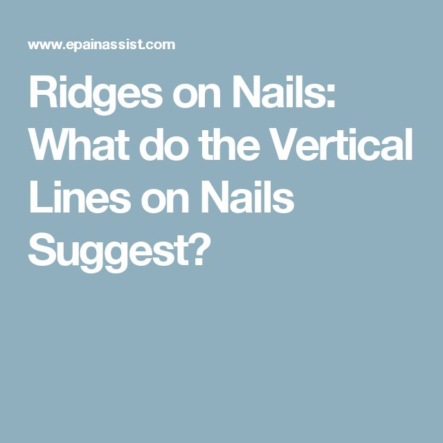 7 Ways To Reduce Fingernail Ridges photo