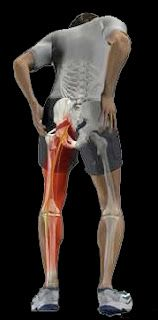 Exercise Basics: Sciatica Part 3 - Treatment Options. click the pic to read more about treating sciatica.
