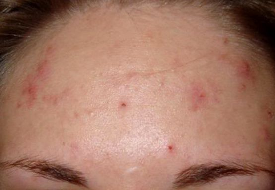 Mild acne vulgaris on forehead | Acne Treatment | Pinterest