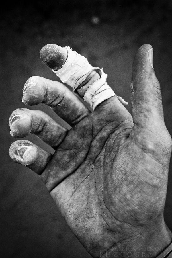 Fotografia manos heridas