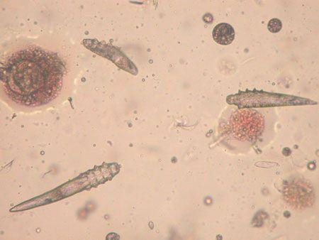 how to kill demodex mites on skin