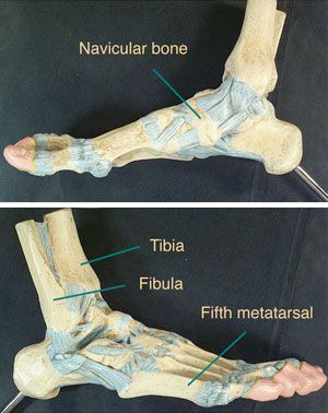 The tibia is the larger of your two leg bones. The fibula is the smaller. The tibia bears the most weight, so if it's broken near your ankle but you mistakenly think you just have a sprain, you can do even more damage just by walking on it.   >   Then I did break my foot all those years ago. Dang!