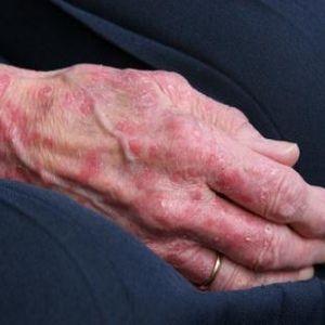 how do you develop eczema